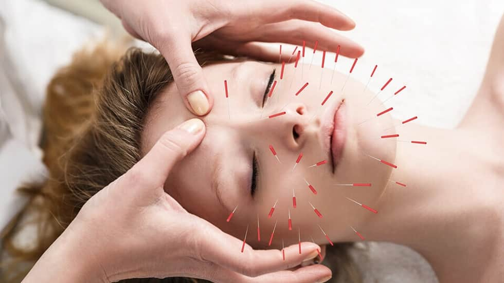 Myths about Acupuncture